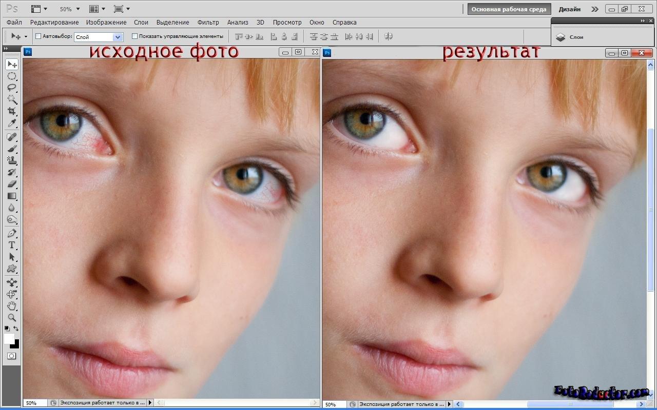 Как сделать красные белки глаз